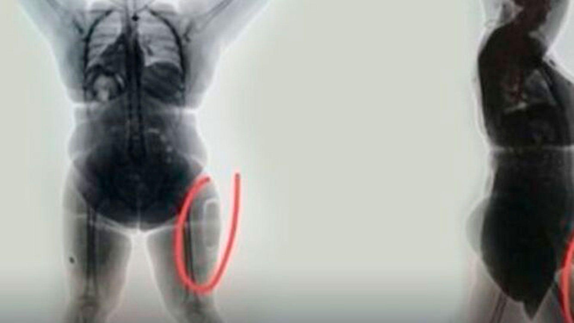 Las autoridades le realizaron un escaneo al cuerpo de la mujer que transportaba cocaína en sus muslos